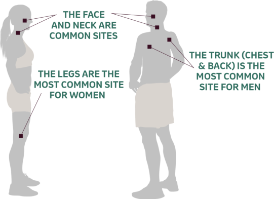 Melanoma common areas in men and women graphic